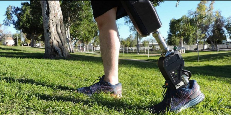 Mexican entrepreneurs develop low cost bionic prostheses